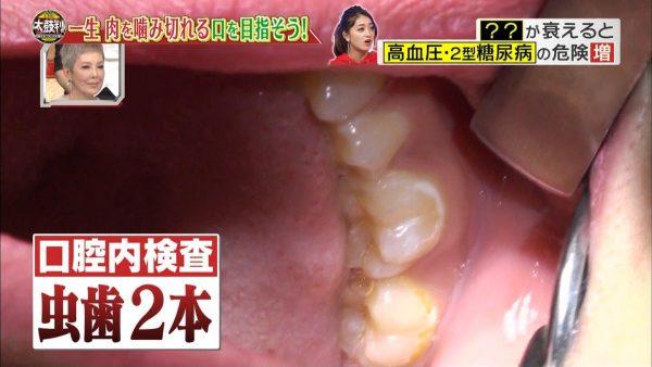 みちょぱの口フェチ用エロ画像008